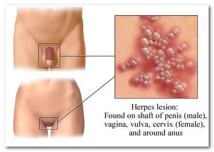 herpes symptoms