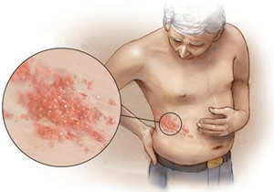 shingles infection