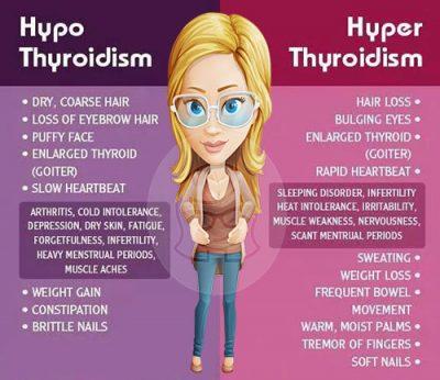 Hyperthyroidism vs Hypothyroidism