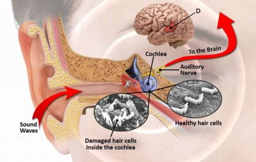 tinnitus signs and symptoms